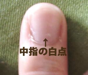 中指の白点